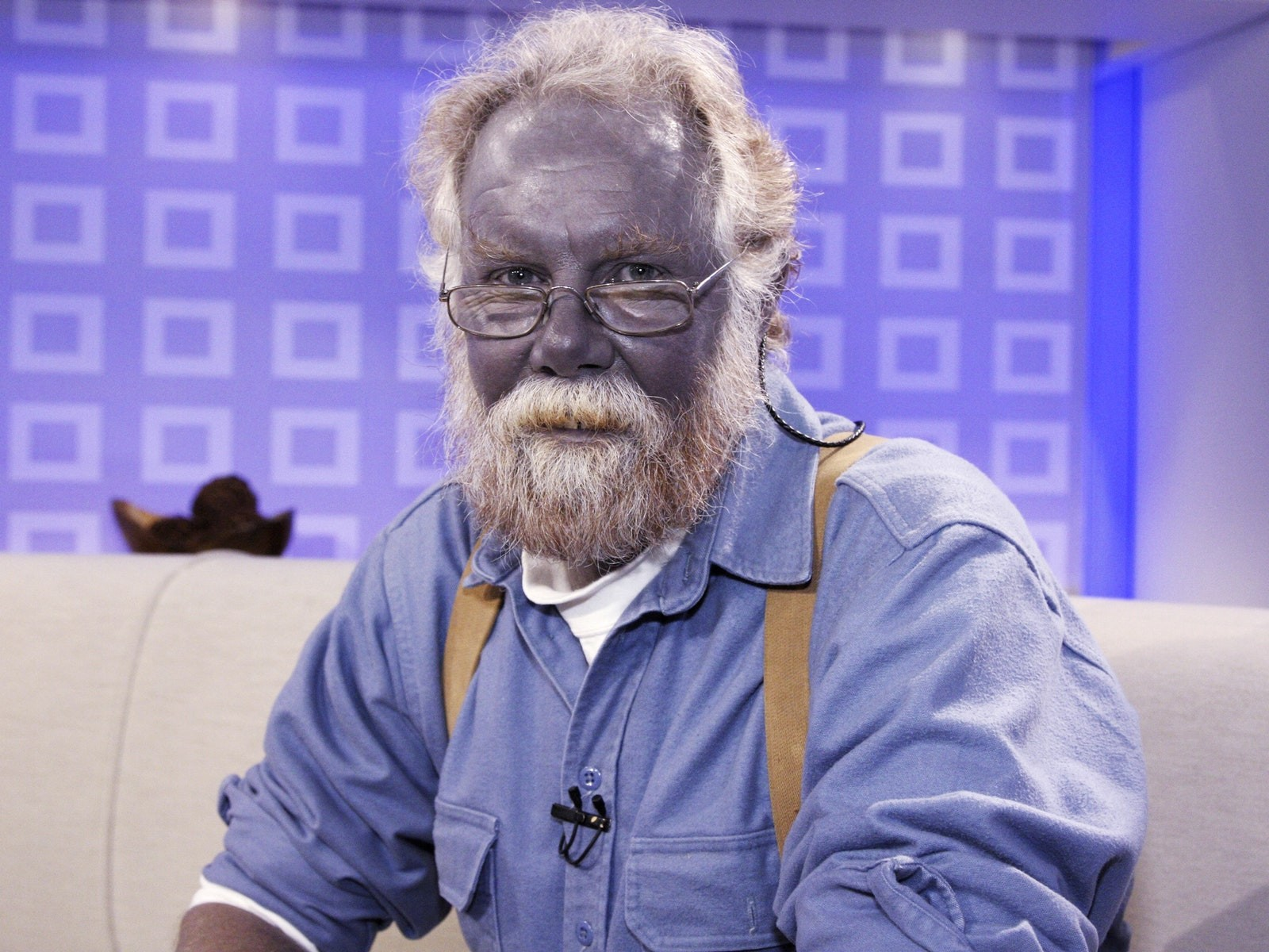 Is It Possible That People Have Blue Skin?