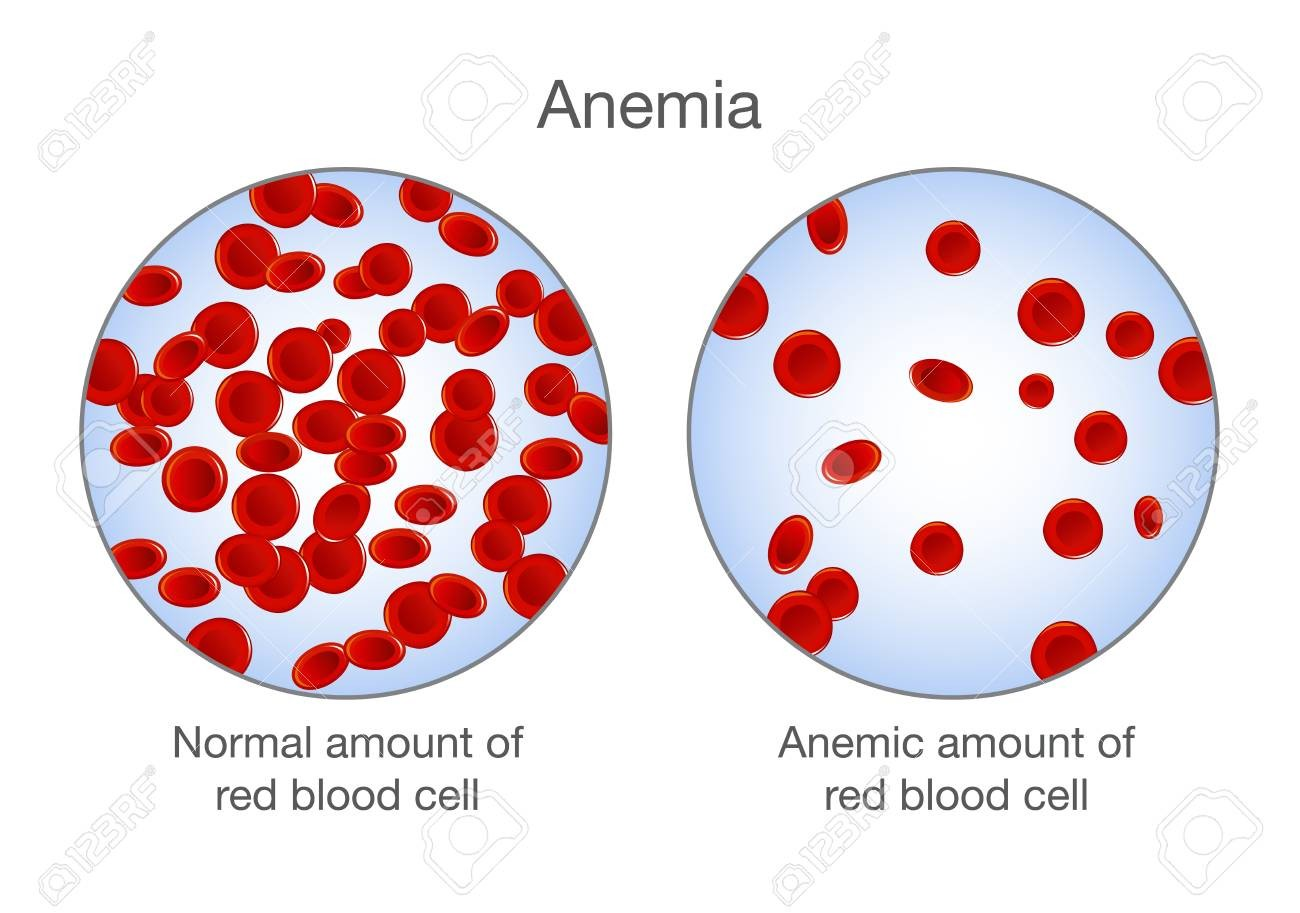 What is anemia, what it happens and how to get rid of it